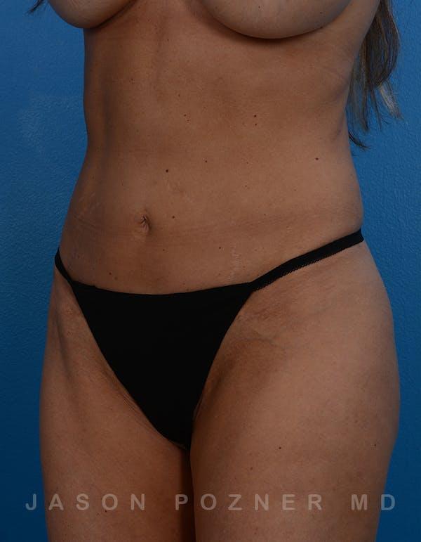BodyTite & Renuvion Gallery - Patient 26207458 - Image 4