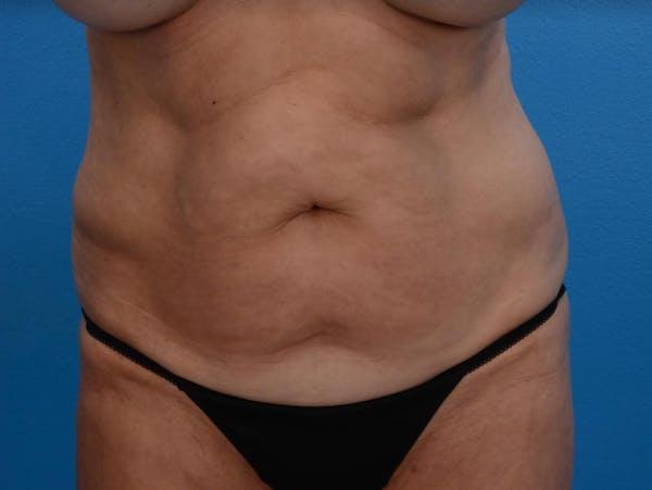 BodyTite & Renuvion Gallery - Patient 26207459 - Image 1