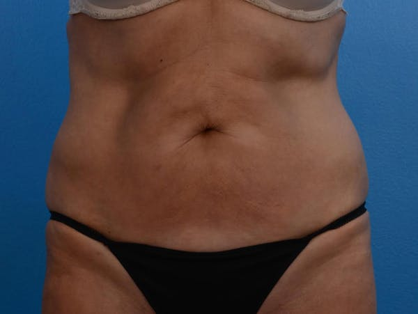 BodyTite & Renuvion Gallery - Patient 26207459 - Image 2