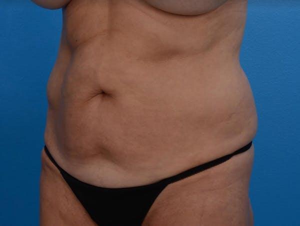 BodyTite & Renuvion Gallery - Patient 26207459 - Image 3