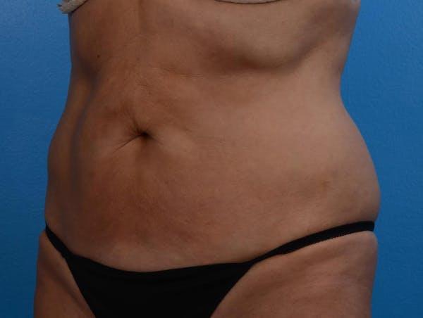 BodyTite & Renuvion Gallery - Patient 26207459 - Image 4