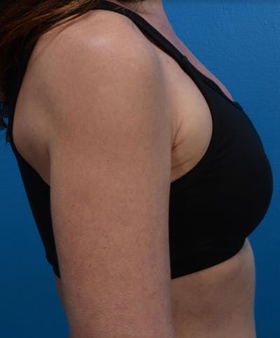 BodyTite & Renuvion Gallery - Patient 26207462 - Image 1