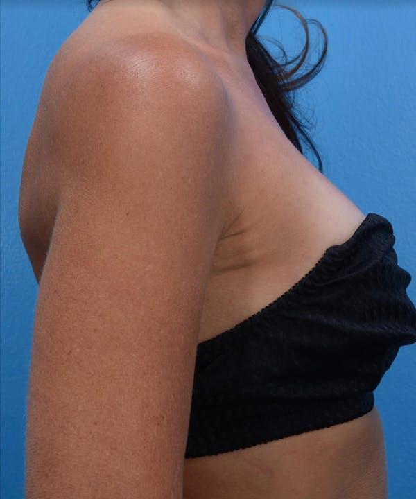 BodyTite & Renuvion Gallery - Patient 26207462 - Image 2