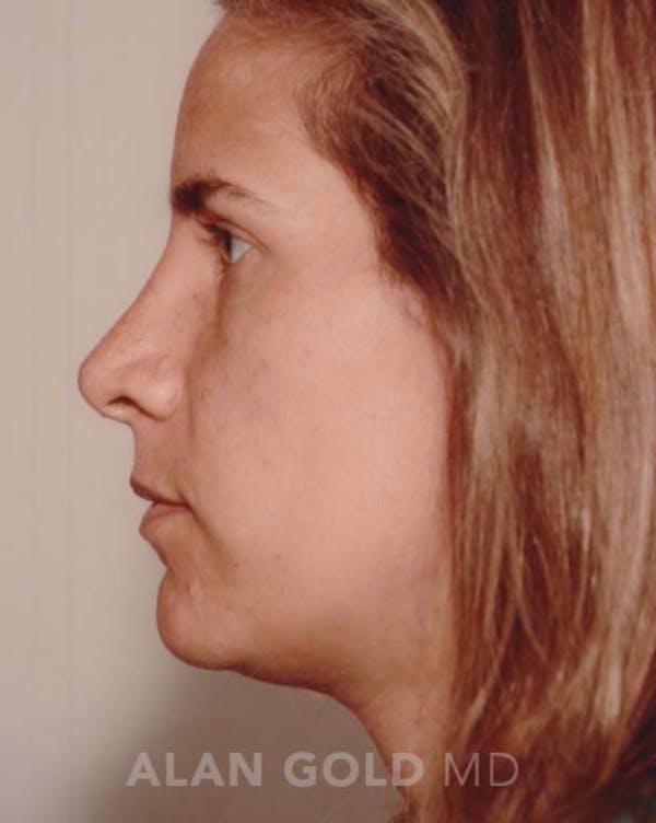 Rhinoplasty Gallery - Patient 19074372 - Image 6