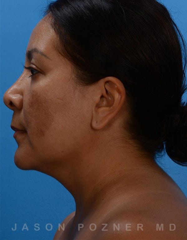 FaceTite Gallery - Patient 19074376 - Image 1