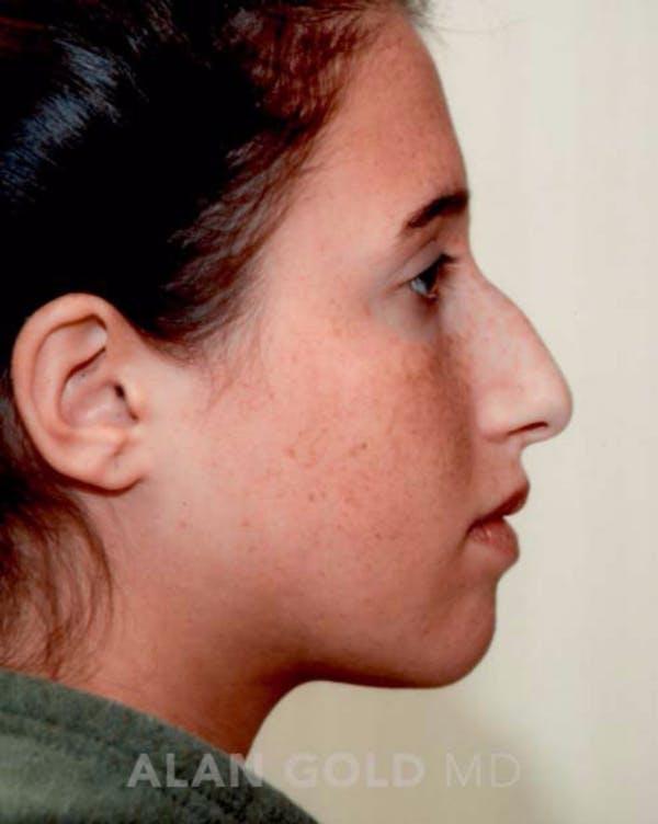 Rhinoplasty Gallery - Patient 19074386 - Image 5