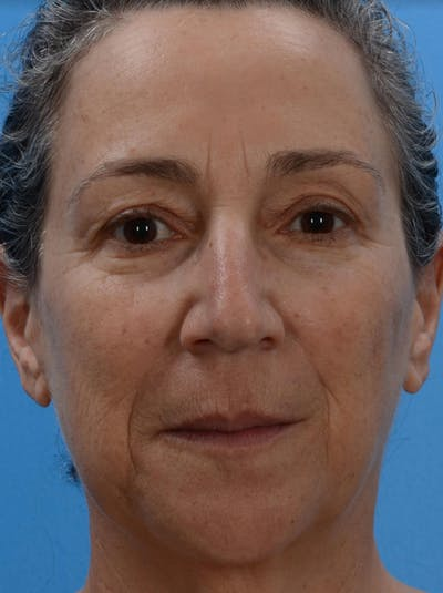 Laser Resurfacing Gallery - Patient 19074400 - Image 1