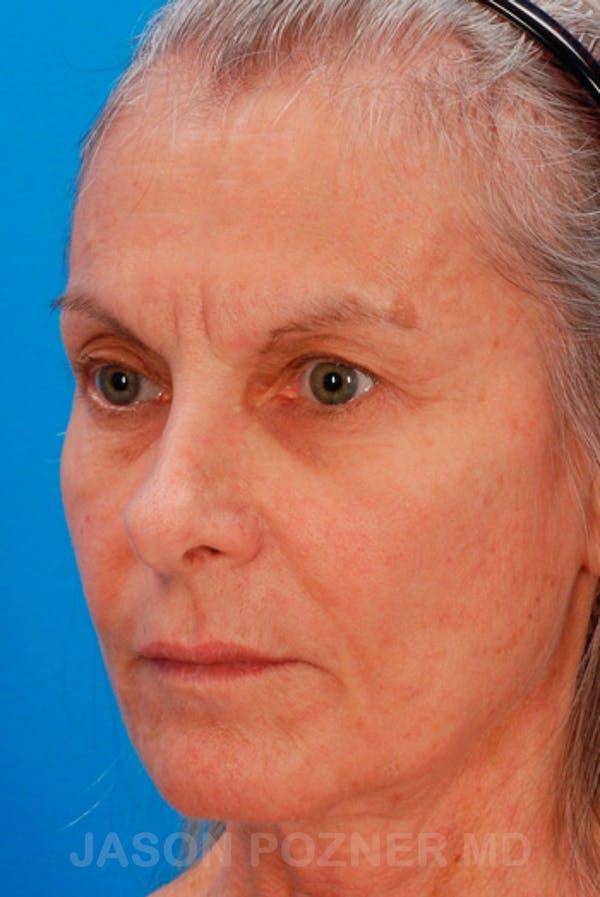 Laser Resurfacing Gallery - Patient 19074402 - Image 3