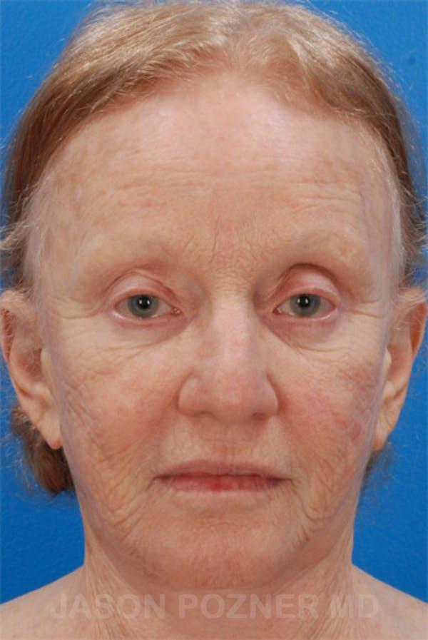 Laser Resurfacing Gallery - Patient 19074403 - Image 1