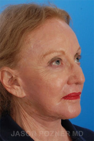 Laser Resurfacing Gallery - Patient 19074403 - Image 4