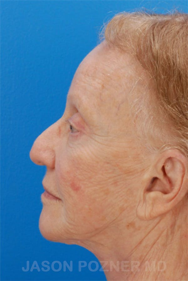 Laser Resurfacing Gallery - Patient 19074403 - Image 5