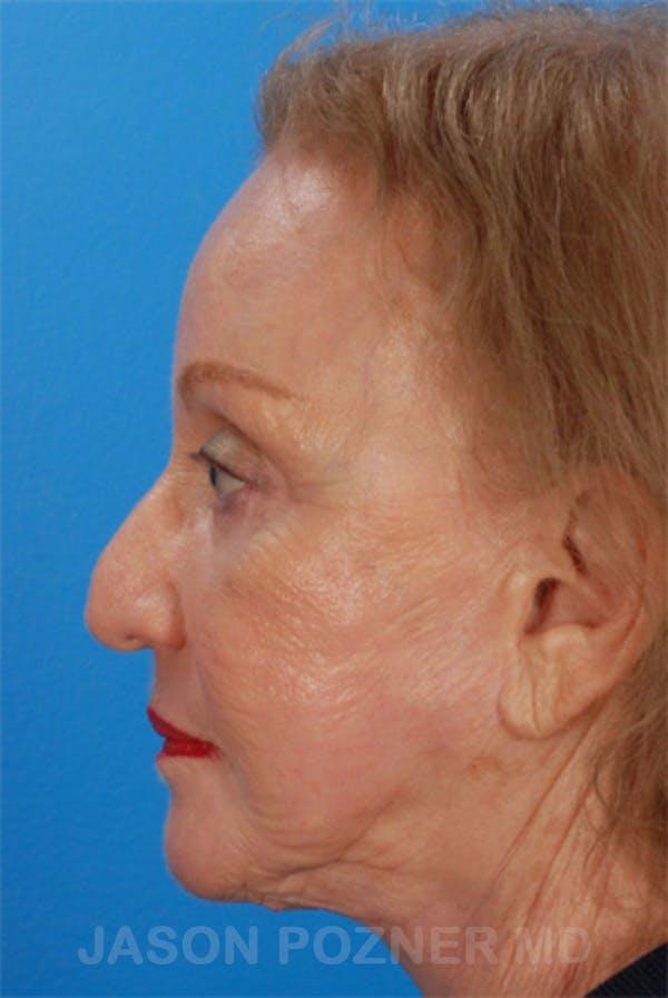 Laser Resurfacing Gallery - Patient 19074403 - Image 6