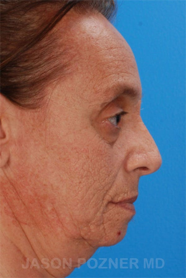 Laser Resurfacing Gallery - Patient 19074406 - Image 3