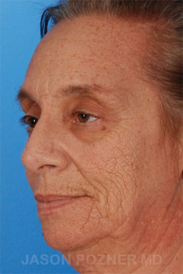 Laser Resurfacing Gallery - Patient 19074406 - Image 5