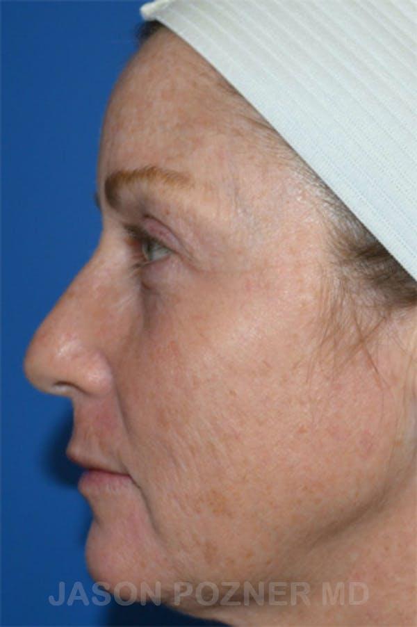 Laser Resurfacing Gallery - Patient 19074409 - Image 3