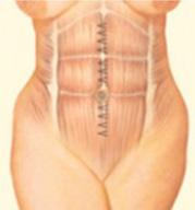 Tummy Tuck Step 3 image