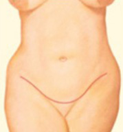 Tummy Tuck Step 4 image