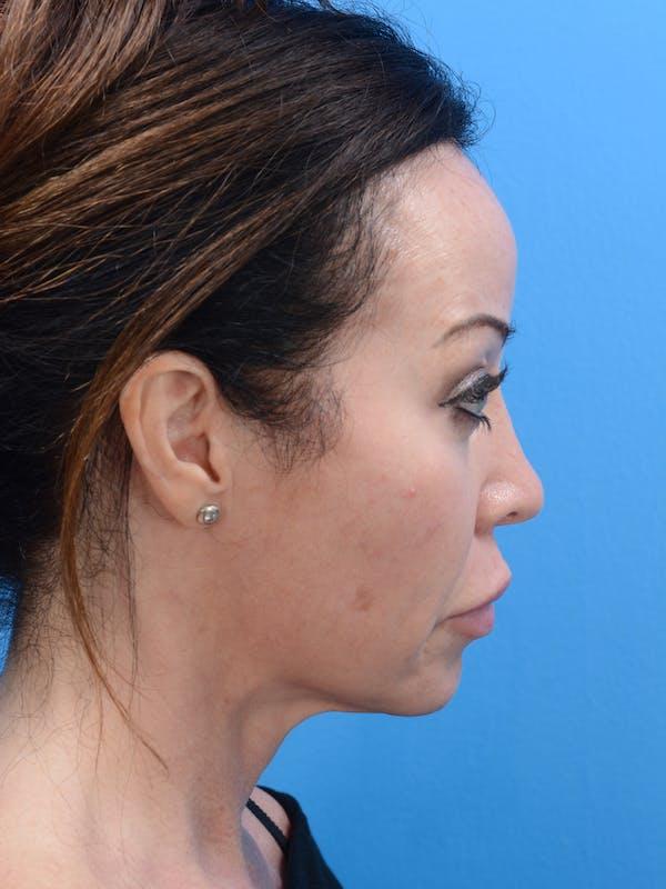 MOXI™ Laser Gallery - Patient 23532742 - Image 1