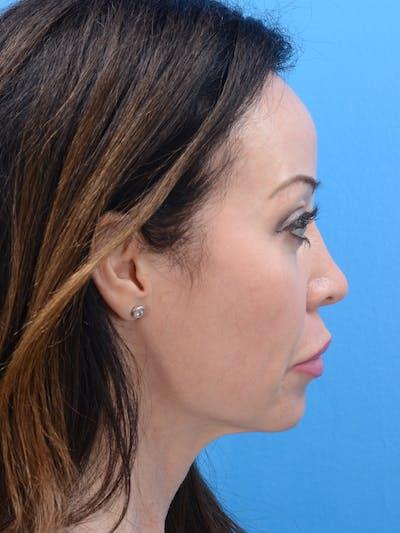 MOXI™ Laser Gallery - Patient 23532742 - Image 2