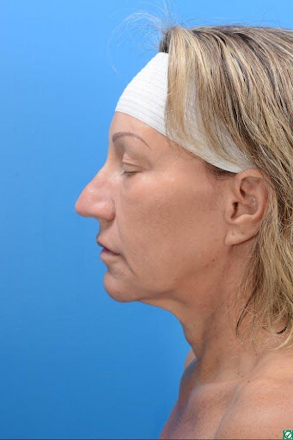Rhinoplasty Gallery - Patient 32743191 - Image 3
