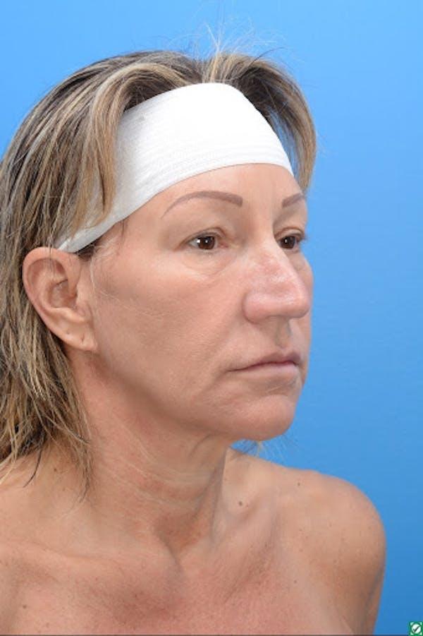 Rhinoplasty Gallery - Patient 32743191 - Image 5