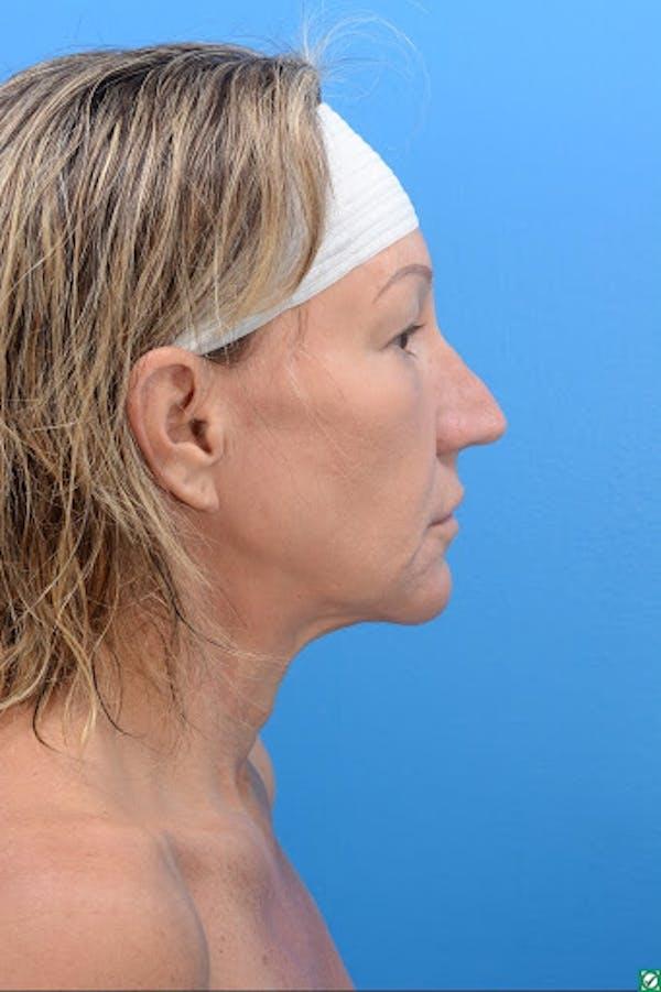 Rhinoplasty Gallery - Patient 32743191 - Image 7