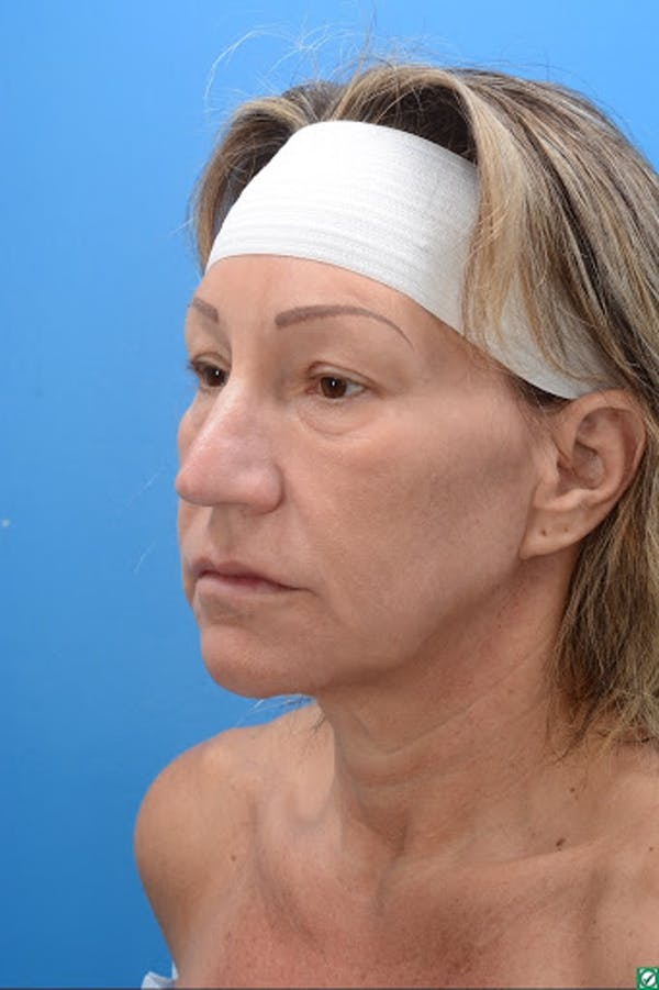 Rhinoplasty Gallery - Patient 32743191 - Image 9