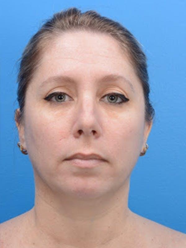 Rhinoplasty Gallery - Patient 32743202 - Image 1