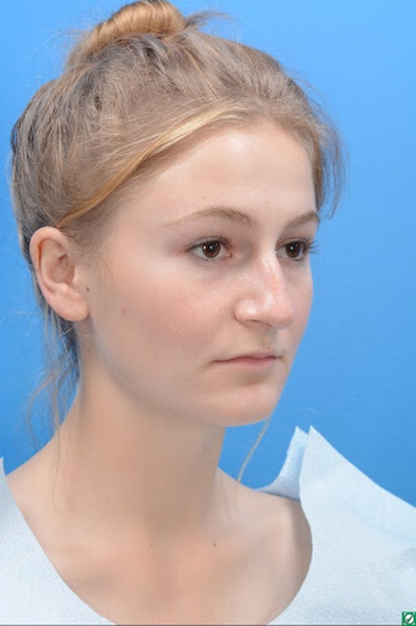 Rhinoplasty Gallery - Patient 32743265 - Image 3