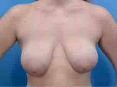 Breast Lift Gallery - Patient 36601569 - Image 2