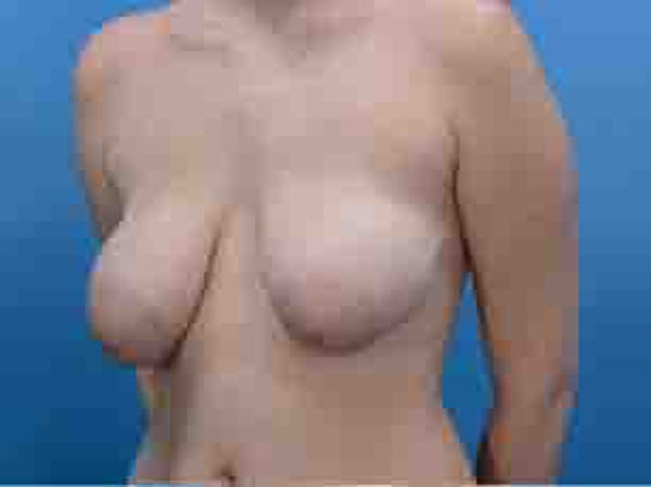 Breast Lift Gallery - Patient 36601569 - Image 4