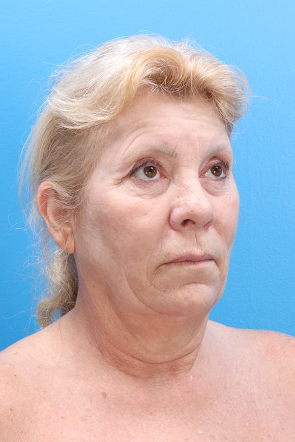 Facelift Gallery - Patient 61120662 - Image 1
