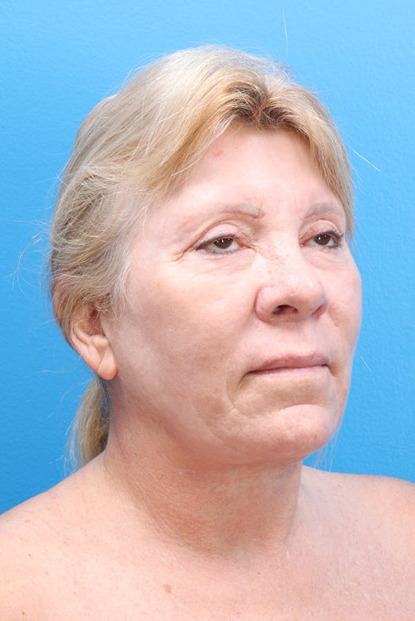 Facelift Gallery - Patient 61120662 - Image 2