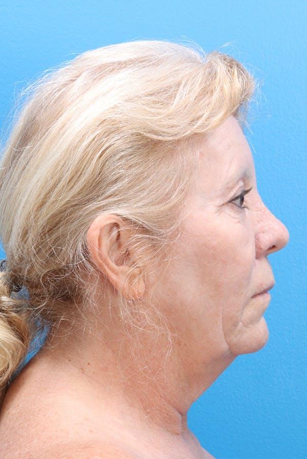 Facelift Gallery - Patient 61120662 - Image 3