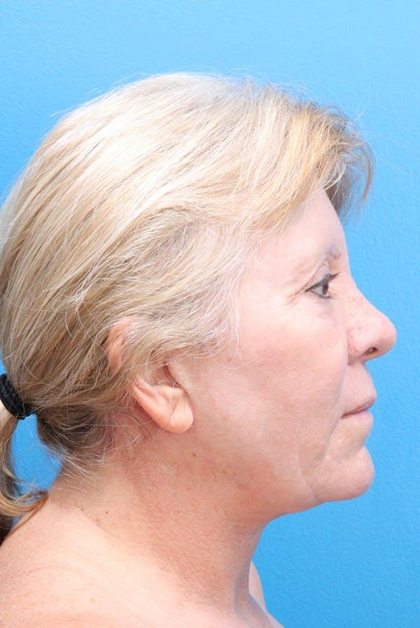 Facelift Gallery - Patient 61120662 - Image 4