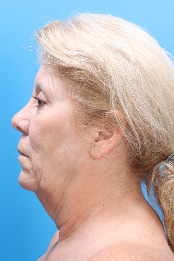 Facelift Gallery - Patient 61120662 - Image 5