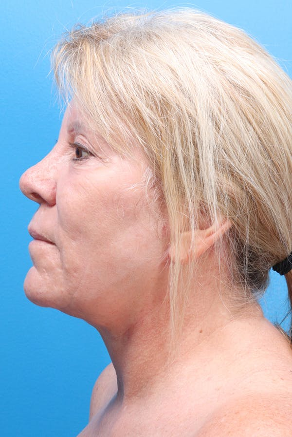 Facelift Gallery - Patient 61120662 - Image 6