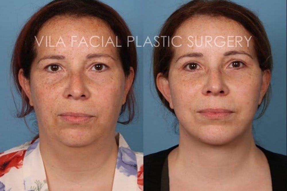 Facelift Gallery - Patient 20061771 - Image 1