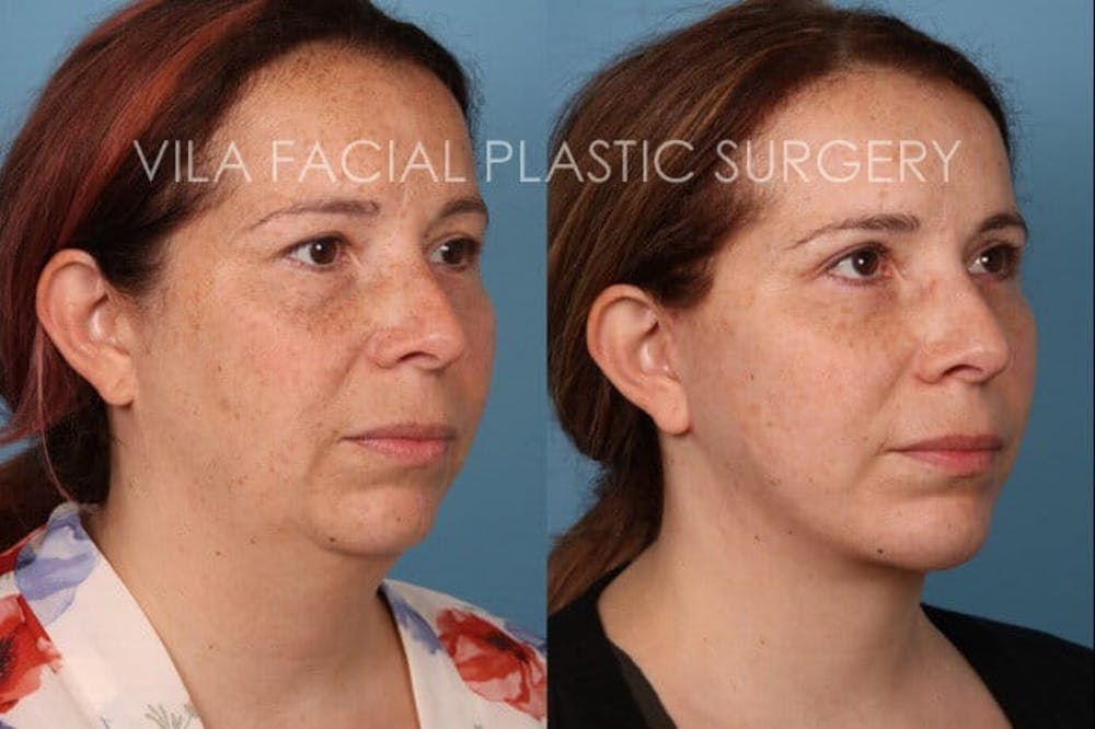 Facelift Gallery - Patient 20061771 - Image 2