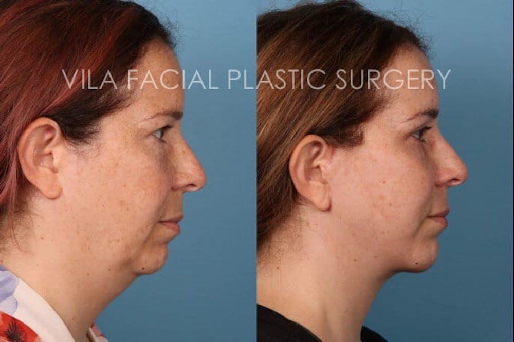 Facelift Gallery - Patient 20061771 - Image 3