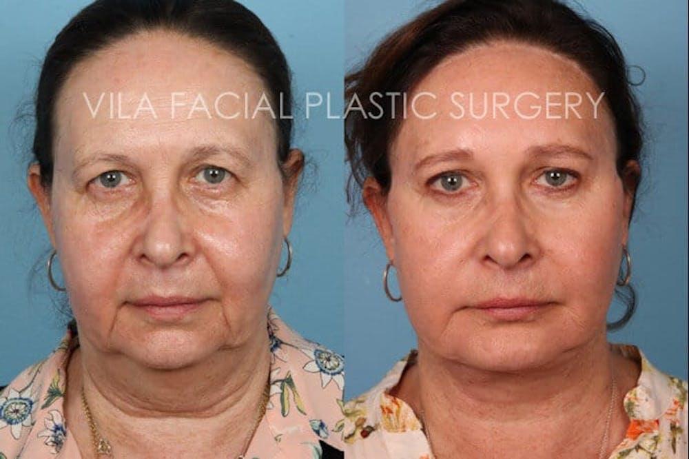 Facelift Gallery - Patient 20061772 - Image 1