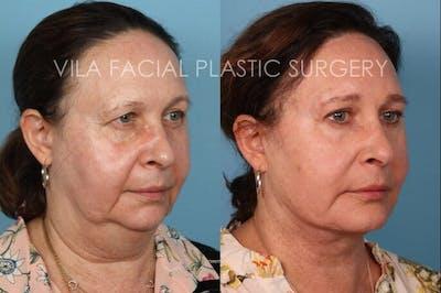 Facelift Gallery - Patient 20061772 - Image 2