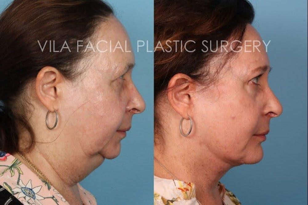 Facelift Gallery - Patient 20061772 - Image 3