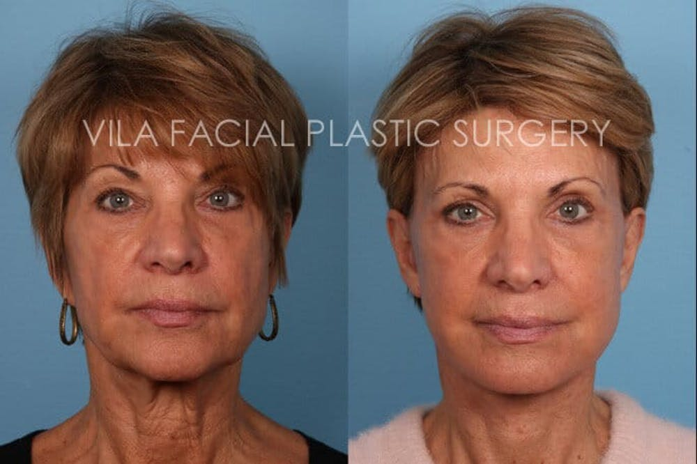 Facelift Gallery - Patient 20061773 - Image 1