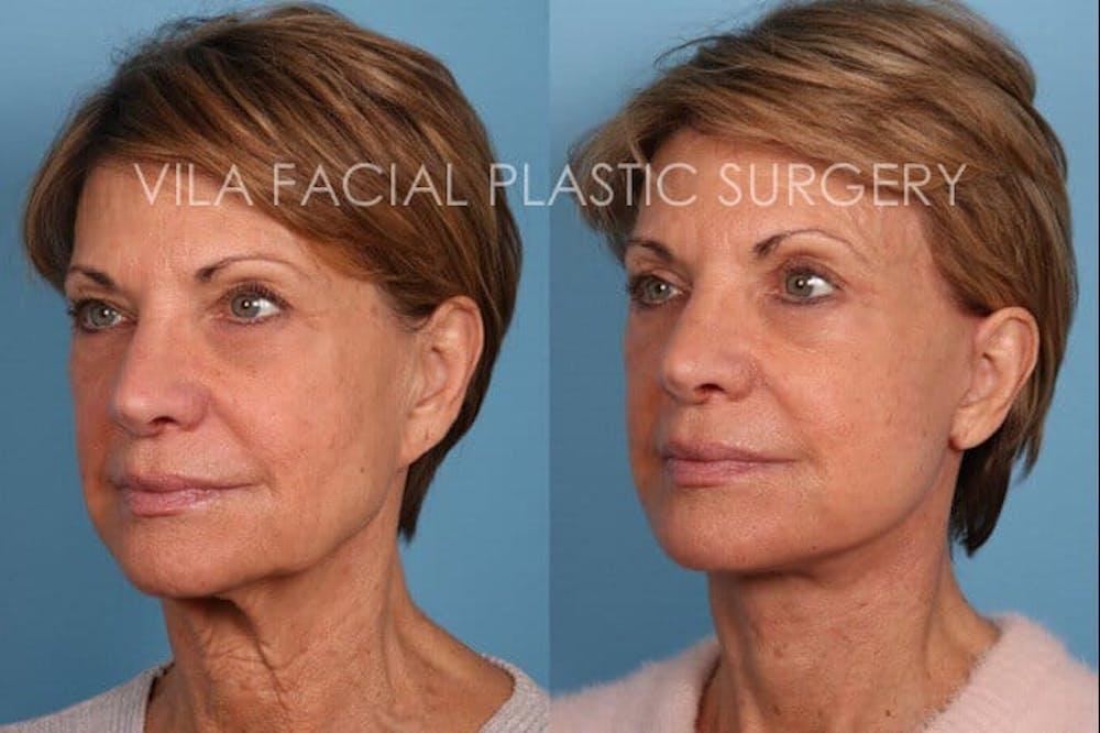 Facelift Gallery - Patient 20061773 - Image 2
