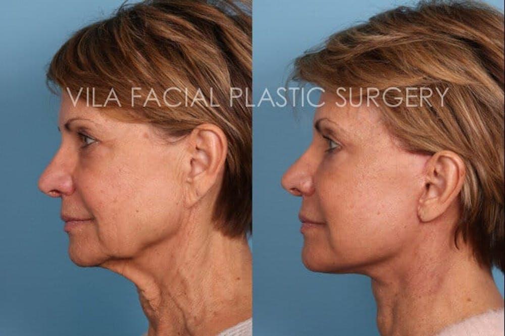 Facelift Gallery - Patient 20061773 - Image 3