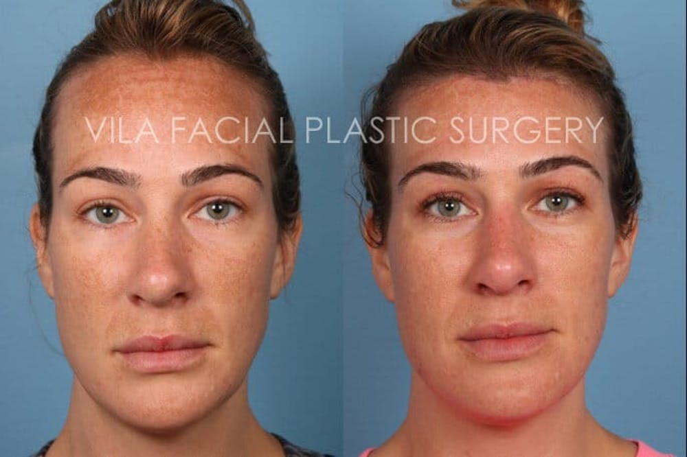 Forehead Reduction Gallery - Patient 20061800 - Image 1