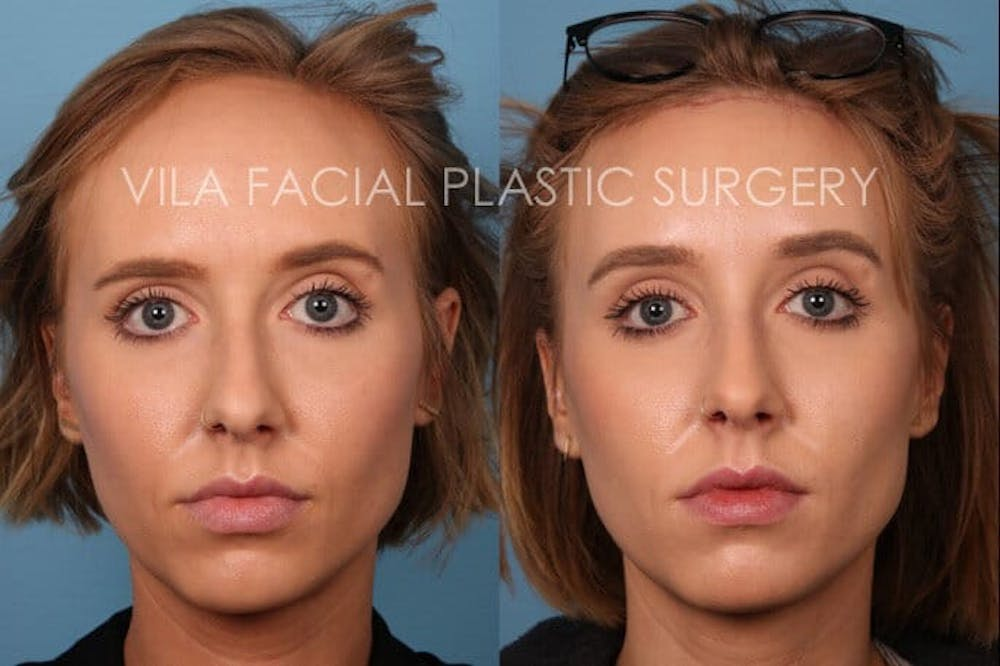 Forehead Reduction Gallery - Patient 20061801 - Image 1