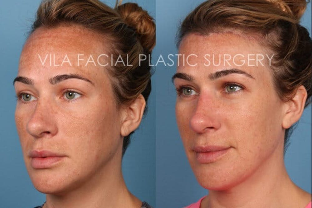 Forehead Reduction Gallery - Patient 20061800 - Image 2