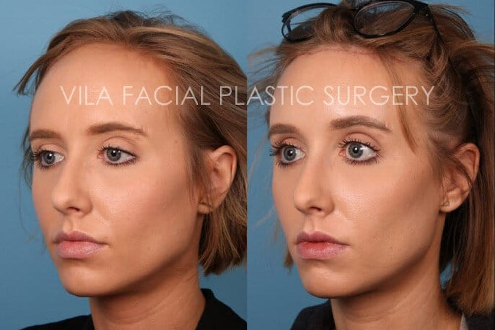 Forehead Reduction Gallery - Patient 20061801 - Image 2